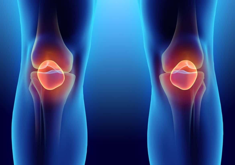 Лесни домашни упражнения при артрит