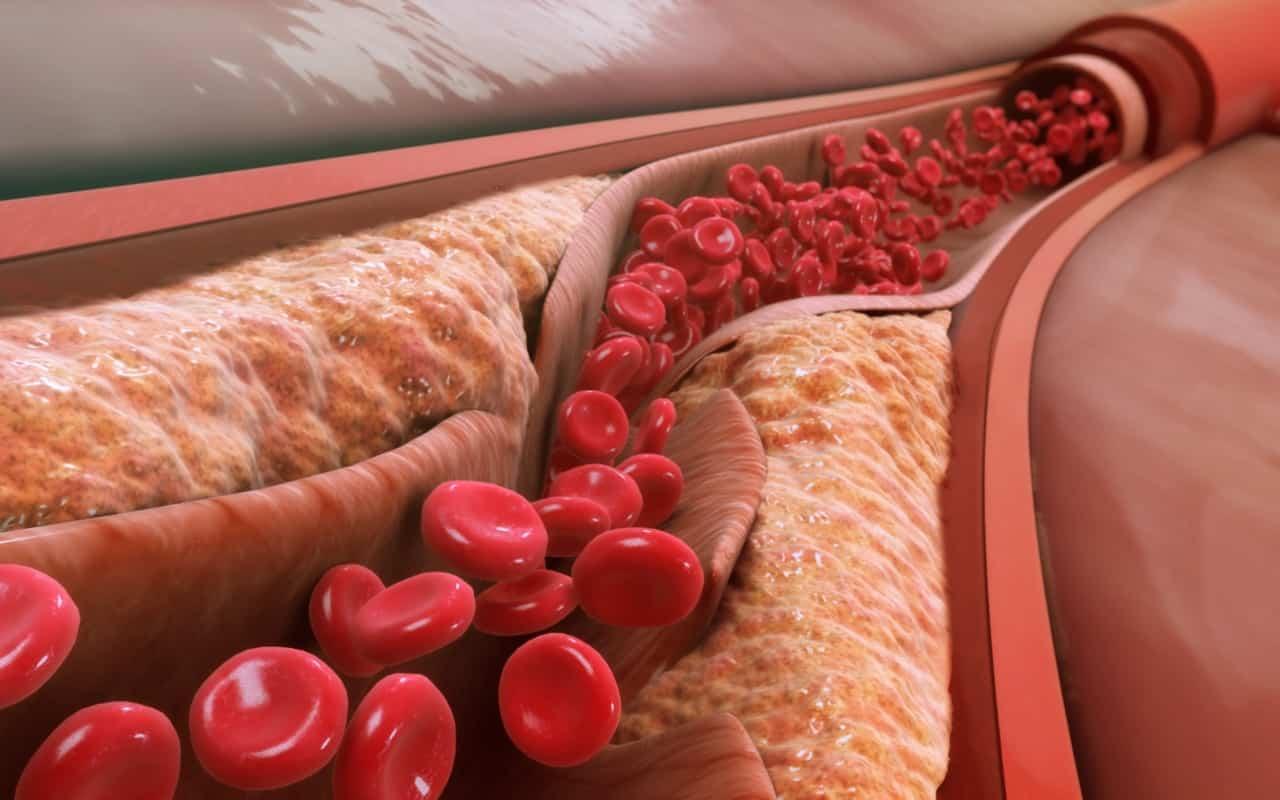 Как да се храним при наличието на висок холестерол-Нутрима-бг-1