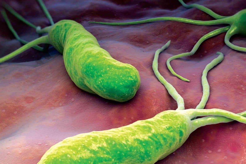 Хеликобактер пилори - всичко за вредната бактерия-Нутрима-бг