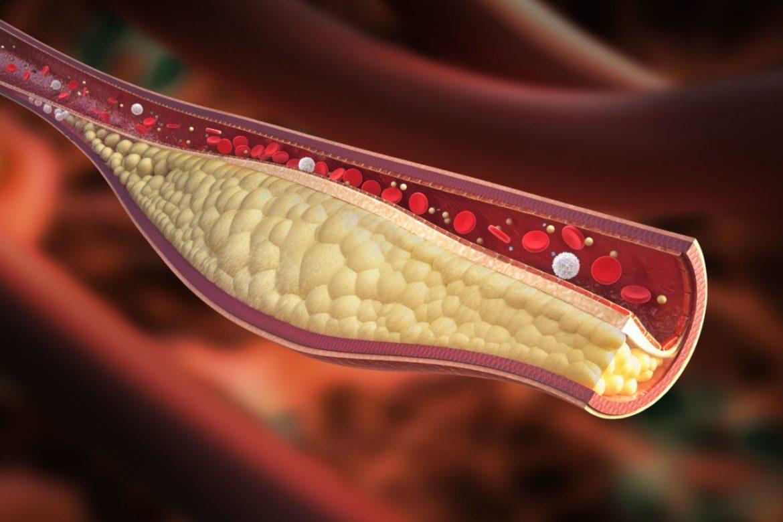 Какви са причините за развитие на атеросклероза-Нутрима-бг